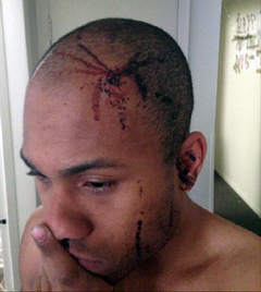 Angelo Bennett's attorney said this photo shows the injury he sustained in an altercation with Charles E. Jones.